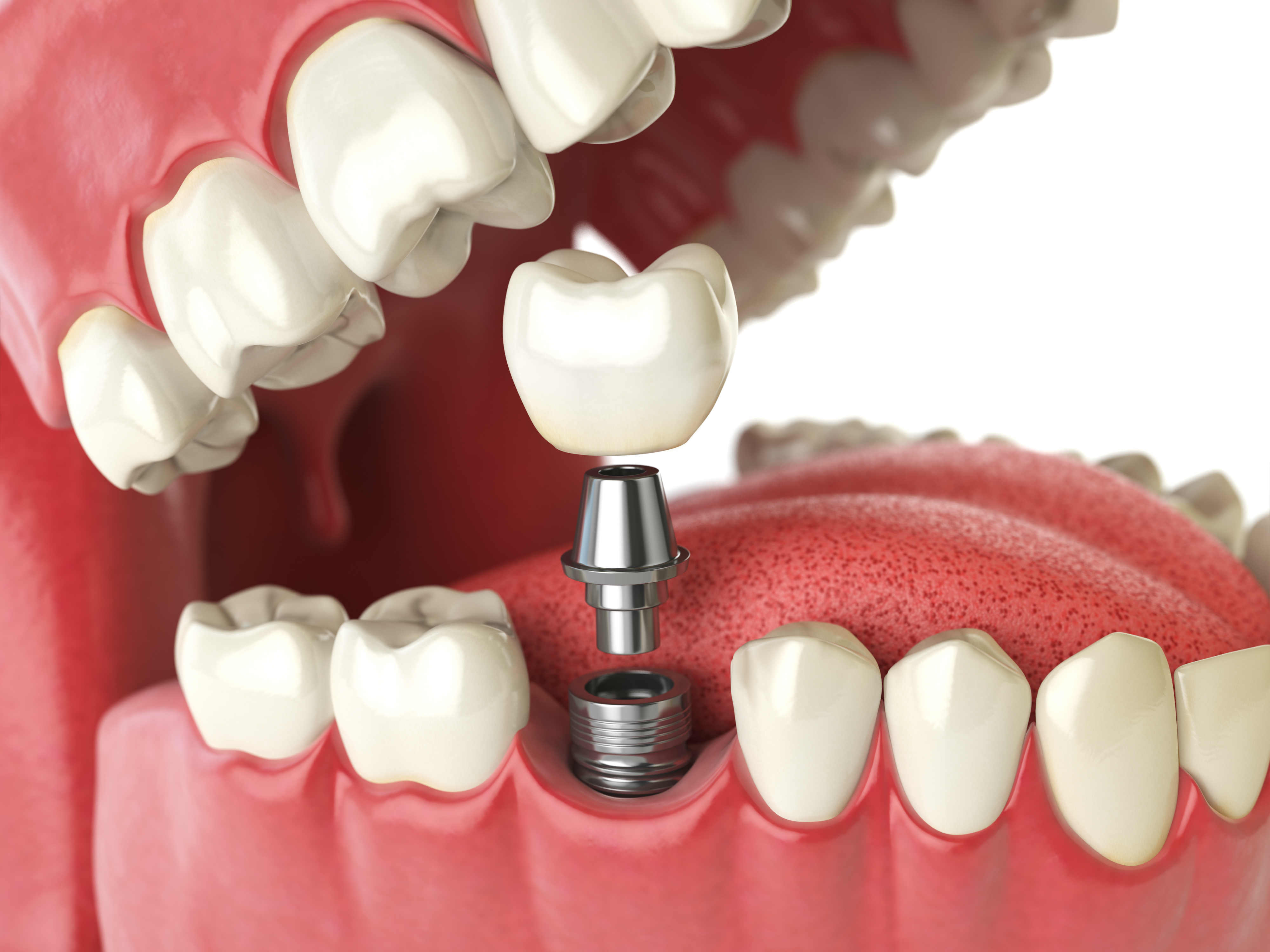 Tooth Implant Melbourne