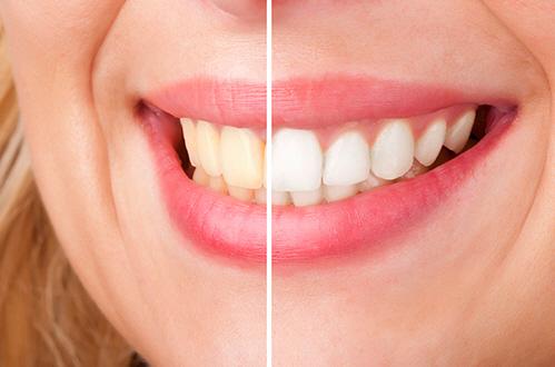 smilingteeth