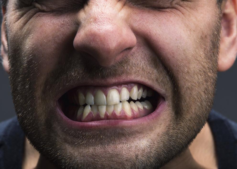 teethgrind