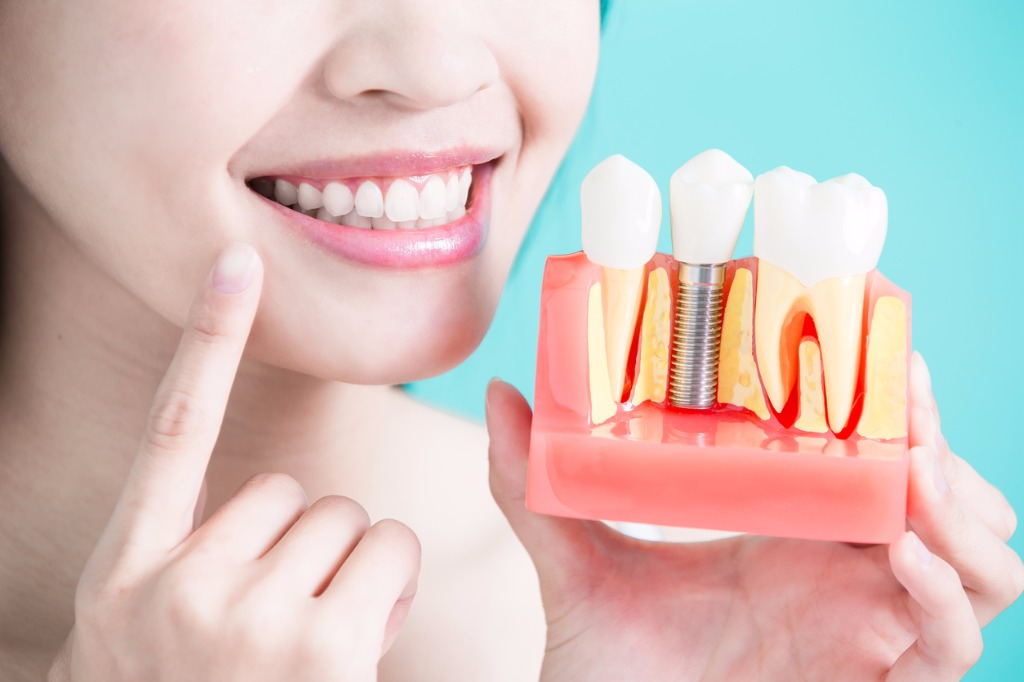 Dental Implants Clinic Melbourne