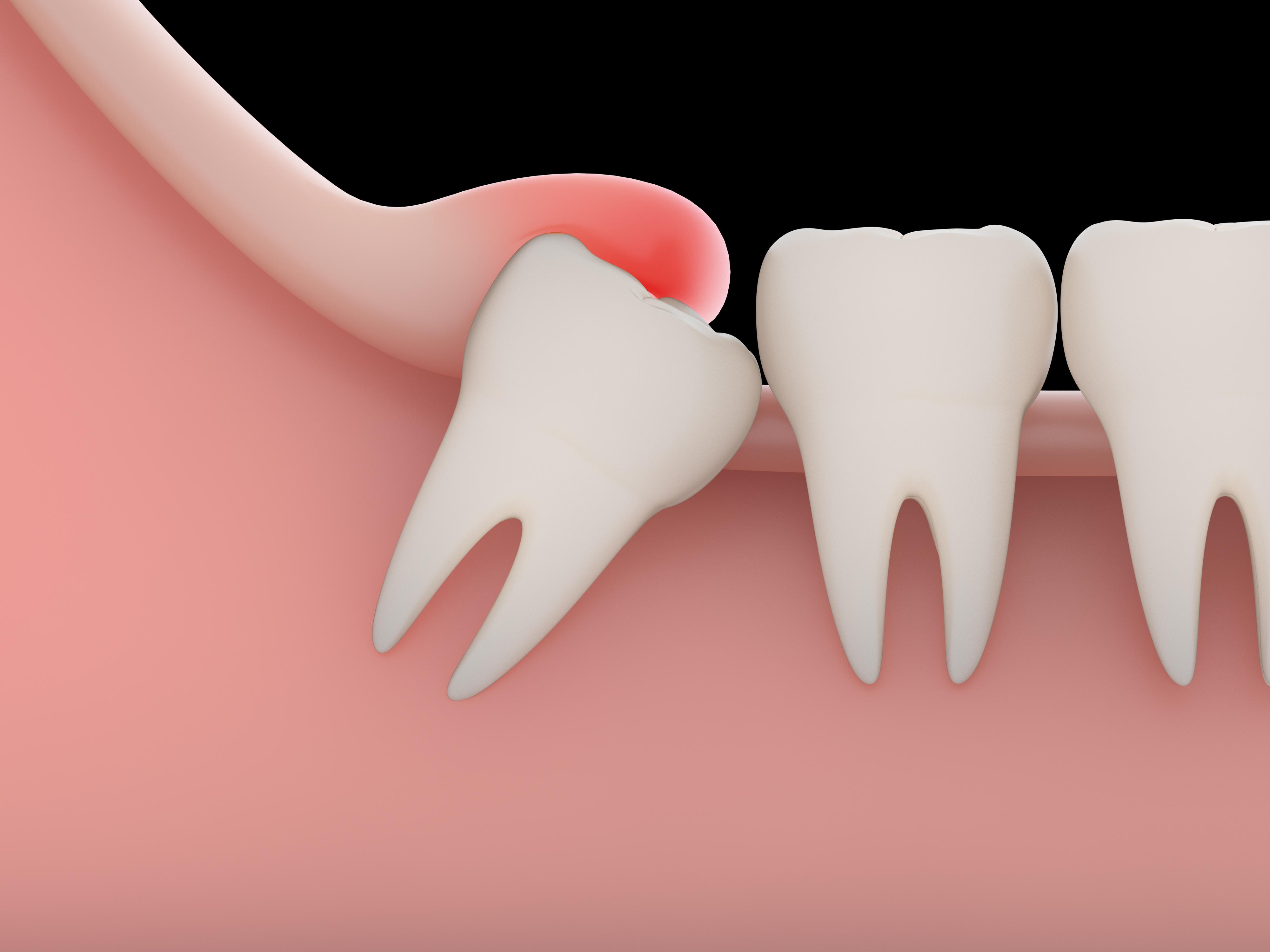 Melbourne Wisdom Teeth Removal | East Bentleigh Dental Group